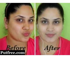 GET ORIGINAL SKIN WHITENING OIL ,INJECTIONS/CREAMS AND PILLS AT SALE RATE CALL +27738432716