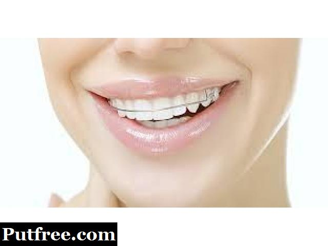 Achieve the Smile of Your Dreams with the Best Cosmetic Dentist in Delhi