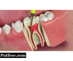 Opt for Bleeding Gum Treatment without Delay to Retain Your Health