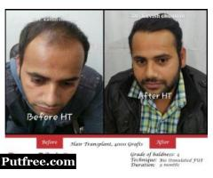 Top Reasons For Common Hair Loss Issues in Everyone