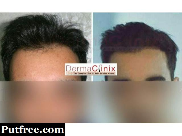 Myths You Need to Avoid About Hair Transplant