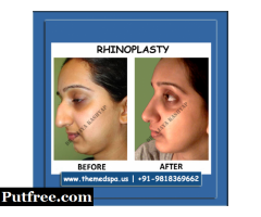 Rhinoplasty Surgery in Delhi by Dr. Ajaya Kashyap - Book Appointment Today!