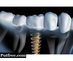 Single Tooth Implant Cost in Delhi