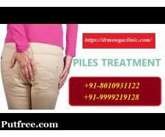 [ [ 801-093-1122 ] ] | piles treatment without surgery in Hauz Khas,Delhi