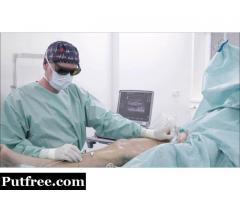 Top Laparoscopic Surgery in india