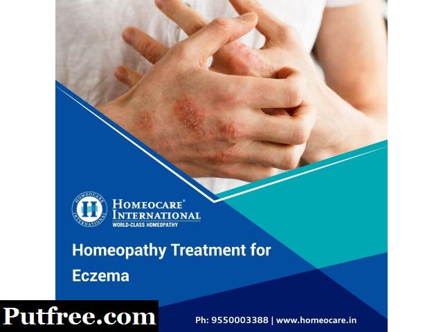 Homeopathic Treatment For Eczema