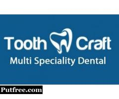Improve the aesthetics of your teeth with veneers